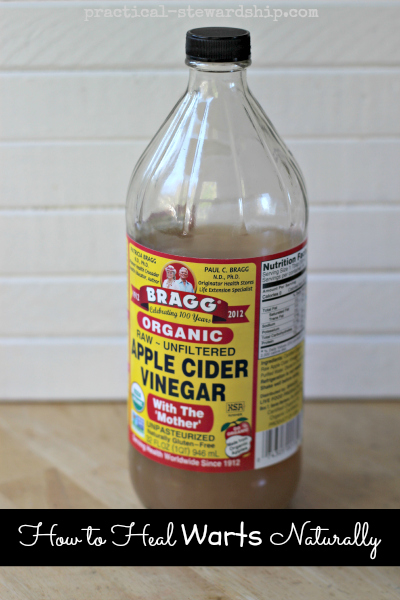 How to Heal Warts Naturally with Apple Cider Vinegar